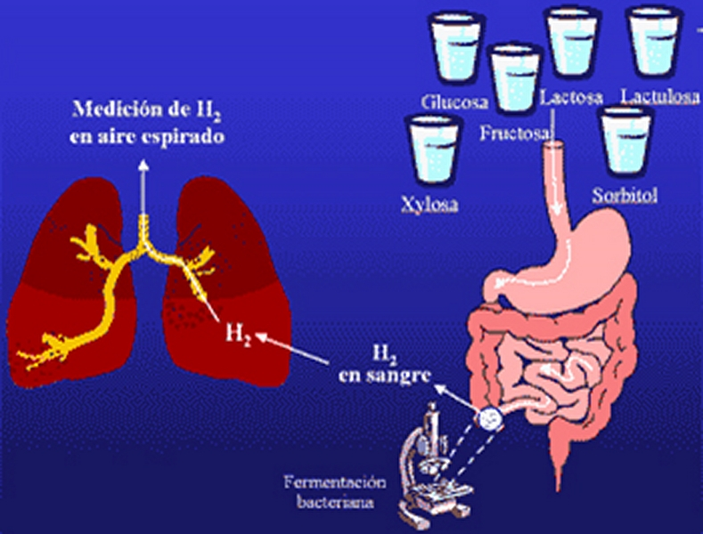 test de hidrogeno espirado soldier sobrecrecimiento bacteriano