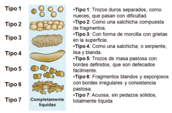 Dieta para sindrome intestino irritable